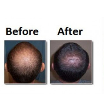 Средство для роста волос Jinda конд-ер